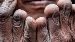 Kỳ lạ bộ lạc tự cắt ngón tay khi có người thân qua đời