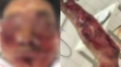 Thử pháo tự chế đón Tết, người đàn ông ở Hà Nam bị nát mặt, nát tay