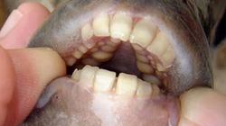 Kinh hãi: Loài cá có hàm răng giống hệt con người, thích cắn của quý của đàn ông