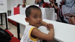 Trẻ khiếm khuyết bộ phận sinh dục: Nỗi đau tránh được
