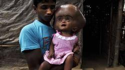 Buốt lòng cảnh bé gái có đầu khổng lồ chờ chết
