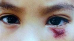 Cô giáo đánh trẻ sưng mắt, trường bị đóng cửa