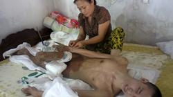 Chậm thực hiện Nghị định 28 ở Hà Tĩnh: Người khuyết tật thiệt thòi