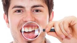 Làm gì khi bị đau, sốt sau diệt tủy răng?