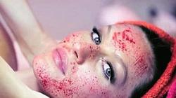 Đến lượt Gisele Bundchen làm đẹp bằng... máu
