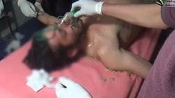 Phe đối lập Syria tố chính quyền Assad thực hiện vụ tấn công hóa học mới
