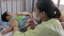 Nhiều người lớn mắc sởi nặng, biến chứng viêm não