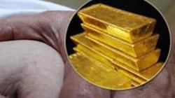 Choáng váng phát hiện 12 lá vàng trong ruột bệnh nhân
