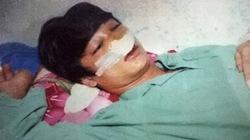 Nam sinh lớp 11 tố bị CSGT đánh vỡ mũi, sập hàm