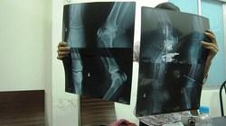 """Kết luận thanh tra Bệnh viện Chấn thương Chỉnh hình TP.HCM: Chưa phát hiện tiêu cực và """"tư túi"""""""