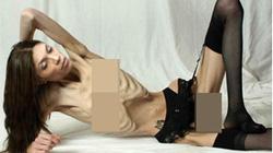 """Kinh hoàng thiếu nữ hóa """"xương khô"""" để giảm cân"""