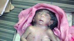"""""""Sững sờ"""" em bé có 8 chi được tôn thờ như thần Ấn Độ"""