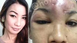 Cô gái Thái mù mắt sau khi trùng tu nhan sắc