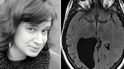 """Kì lạ người phụ nữ bị """"thủng"""" một lỗ lớn trong não"""