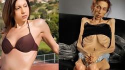 Gặp người phụ nữ siêu gầy nặng 20kg, cao 1m7