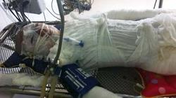 Quảng Ninh: 4 học sinh bị điện 110KV phóng cháy người