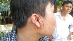 Vụ hành hung phóng viên ở TP.HCM: Tạm giữ 2 người tình nghi