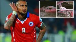 Tai nạn kinh hoàng, Vidal suýt mất mạng
