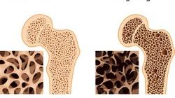 Tái tạo xương từ tế bào gốc