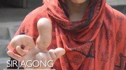Bàn tay khổng lồ dị dạng của người phụ nữ Bangladesh