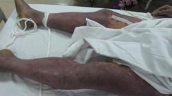 Lại có bệnh nhân tử vong do ăn tiết canh lợn
