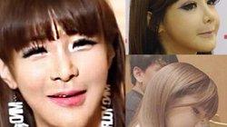 """Mặt mũi méo mó của """"thảm họa thẩm mỹ"""" xứ Hàn"""