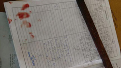 Bác sĩ bị đánh gục khi đang xem bệnh án: Bộ Y tế vào cuộc