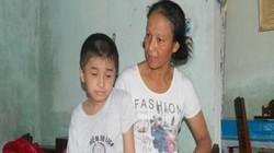 Nghị lực phi thường của cậu bé 11 tuổi bị gẫy chân 17 lần