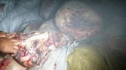 """Clip cận cảnh 5 tấn mỡ, da lợn """"bẩn"""" trong kho đông lạnh ở Nghệ An"""