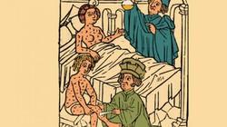 Kinh hãi cách chữa giang mai bằng thủy ngân cực độc, nhiều người đã bỏ mạng