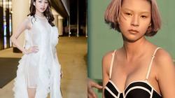 Lộ sẹo nách, Phí Phương Anh nói gì khi bị nghi vấn nâng ngực