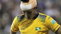"""Cầu thủ bị xe cứu thương HAGL """"bỏ rơi"""" phải khâu 15 mũi trên đầu"""