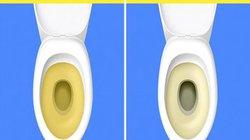 Đừng bỏ qua 7 dấu hiệu đáng báo động khi nạp quá nhiều muối vào cơ thể