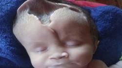 Căn bệnh lạ hiếm gặp khiến bé gái sinh ra bị thiếu mất nữa hộp sọ