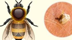 Mẹo phân biệt vết đốt của các loại côn trùng ai cũng phải biết trước khi quá muộn