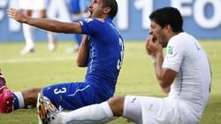 """Hành vi """"cẩu xực"""" của Suarez trở thành kèo cá cược tại World Cup 2018"""