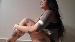 Kỳ lạ người phụ nữ sinh ra với hàng trăm ngàn nốt ruồi trên cơ thể