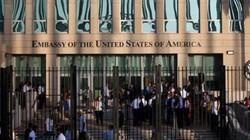 """4 giả thuyết về """"bệnh lạ"""" của nhân viên ngoại giao Mỹ ở Trung Quốc, Cuba"""