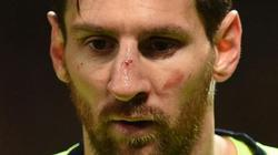 """Barcelona nhận tin """"sét đánh"""" về Messi"""