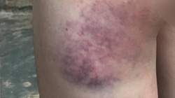 Xem xét kỷ luật cô giáo đánh bầm mông học sinh lớp 4