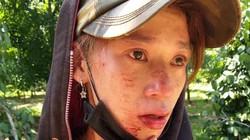 Quảng Trị: Điều tra nhóm người lạ đánh dân dã man