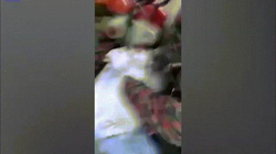 """Video: Thiếu niên 16 tuổi kẹt """"của quý"""" vào ống nước trong toilet"""