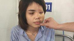 Cô gái bị chồng sắp cưới tạt axit được tái tạo lại khuôn mặt