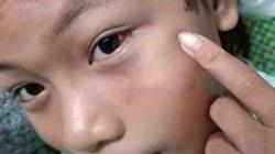 Công an viên xóm hối hận vì còng tay, đánh bé gái 12 tuổi