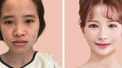 """Cô gái Việt """"tái sinh"""", đẹp như búp bê: Chê bai ngoại hình là con dao bén nhất"""