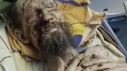 Nga: Người đàn ông trông như xác ướp, bị gấu nhốt trong hang cả tháng làm thức ăn?