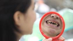 Bị bào mòn cả hàm răng vì 'đại tu'... kiểu 3D