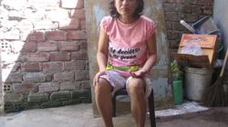 Giúp người phụ nữ nghèo mắc bệnh hiểm nghèo