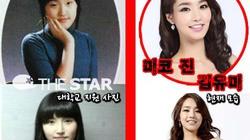 Hoa hậu Hàn đẹp như nữ thần nhờ phẫu thuật