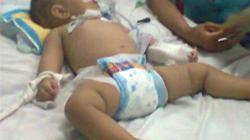 Hóc lạc sặc vào đường thở, bé trai nhập viện